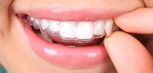 Invisalign Benefits, Delta Dentist